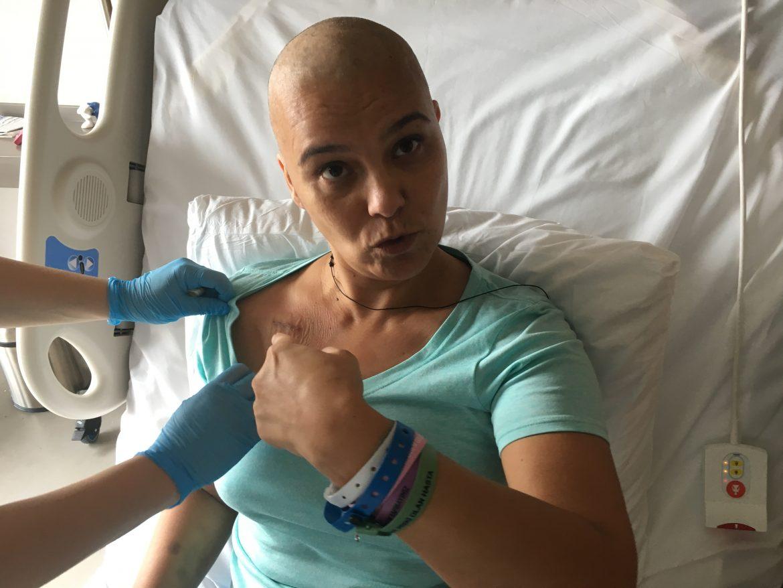 Kemoterapi port takılması